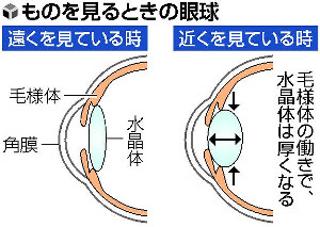smartphone-Presbyopia-3